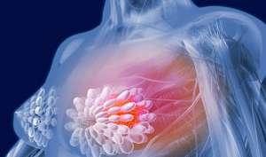 30 की उम्र में दिखने लगते है ब्रेस्ट कैंसर के ये लक्षण, महिलाएं ऐसे करें खुद का बचाव