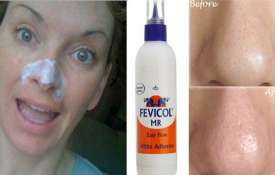 glue fevicol to remove blackheads- Khabar IndiaTV