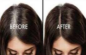 Hair- Khabar IndiaTV