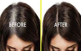 White hair treatment- Khabar IndiaTV
