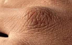 <p>skin...- India TV