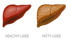 Fatty liver- India TV