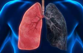lungs cancer- India TV