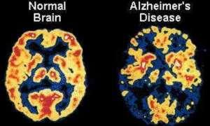 विश्व अल्जाइमर दिवस: देश में करीब 16 लाख लोग अल्जाइमर से पीड़ित, ऐसे करें पहचान