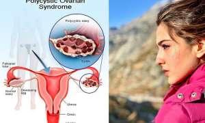 सारा अली खान को हुआ था PCOS बीमारी, जानें क्या है पॉलीसिस्टिक अंडाशय सिंड्रोम और लक्षण के साथ इलाज भी