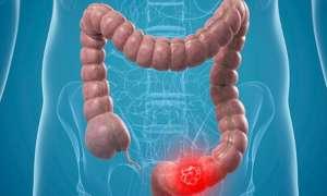 आंत के कैंसर में इन बातों का खास ख्याल रखने की है जरूरत, पढ़िए पूरी खबर