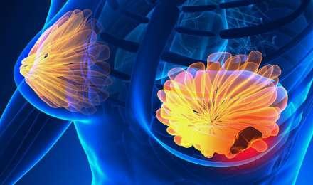 Breast Cancer: नार्मल से दिखने वाले इस संकेतों को न करें इग्नोर, हो सकता है ब्रेस्ट कैंसर