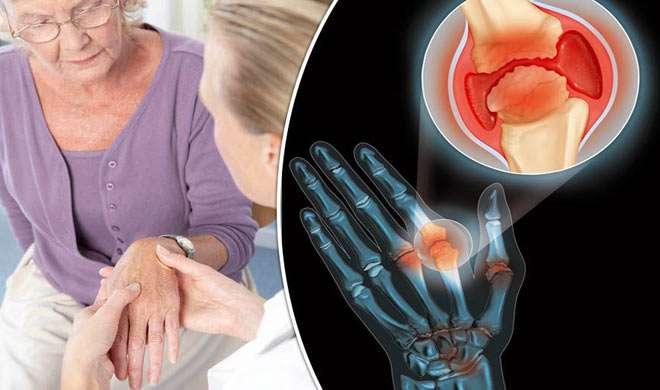 ज्वाइंट्स में 7 दिन से ज्यादा रहता है दर्द, तो हो सकती है ये गंभीर बीमारी