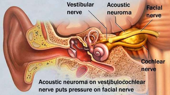 brain tumor acoustic neuroma