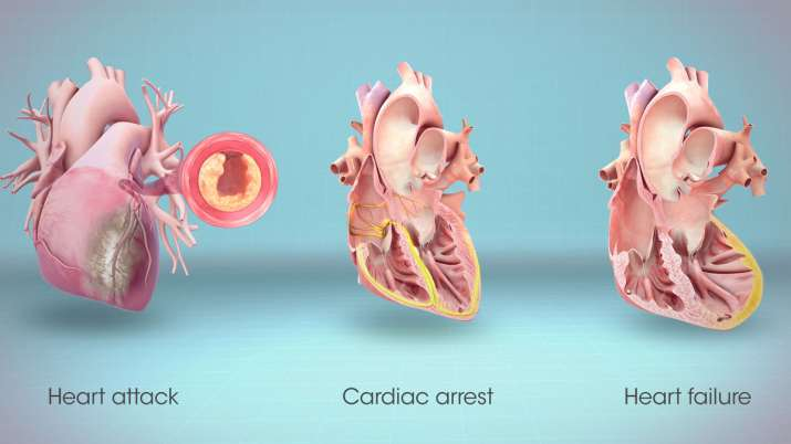 differnce between heart attack and cardiac arrest