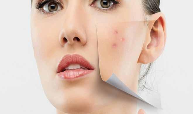 pimples- India TV