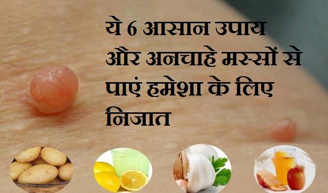 ये 6 आसान उपाय और...- India TV