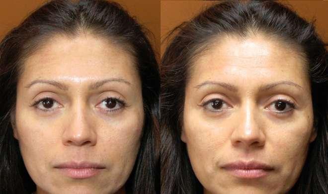 face swelling- Khabar IndiaTV