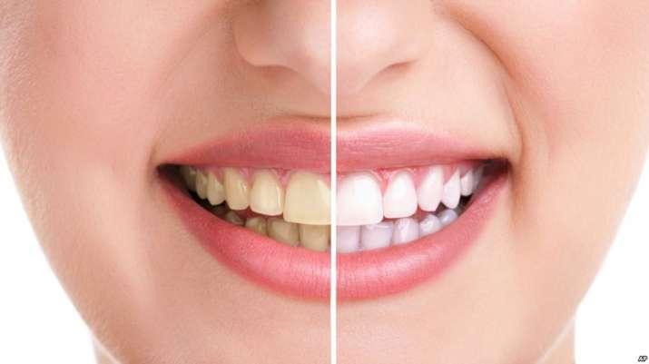 teeth- India TV