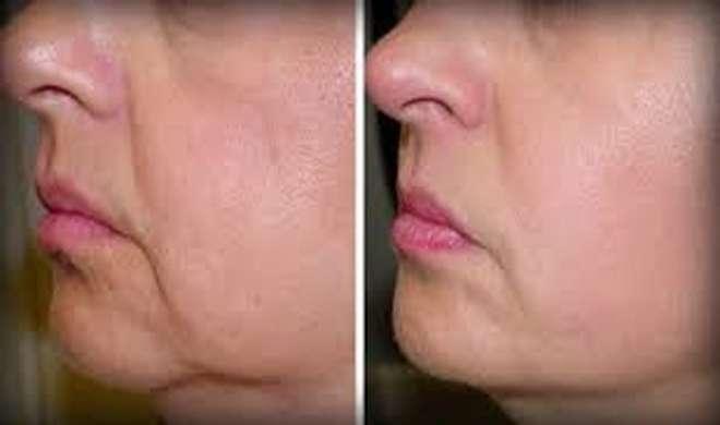 Image result for चेहरे की त्वचा ढीली पड़ने लगती