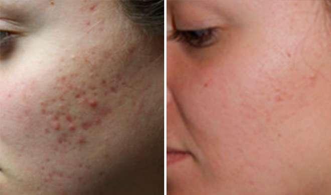 Image result for चेहरे के गड्ढे