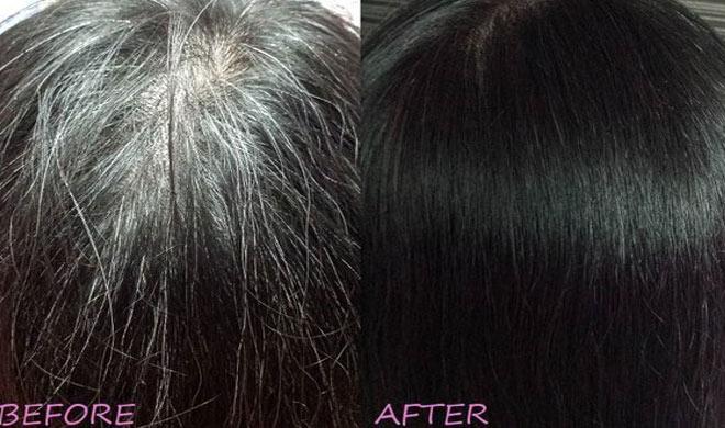 Image result for सफेद बालो को फिर से काला कर