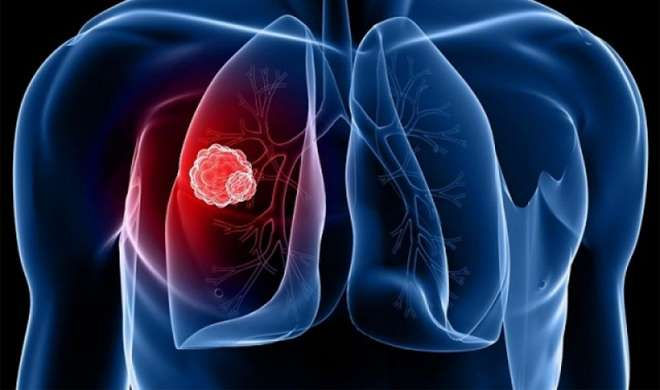 Lung Cancer- India TV