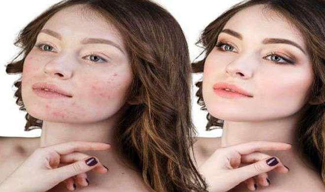 skin care- India TV