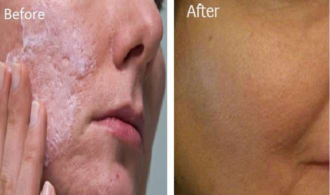 skin problem- Khabar IndiaTV