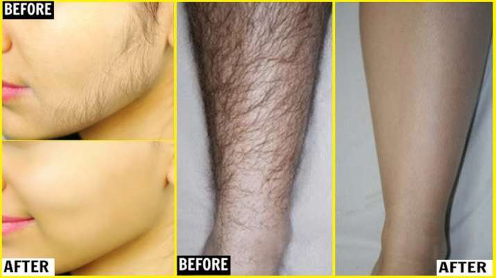 unwanted hair remover- India TV