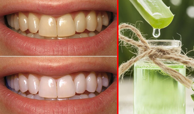 aloe vera use for white teeth- Khabar IndiaTV