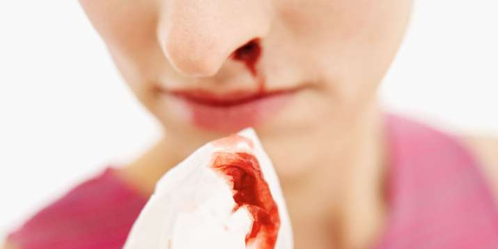 3 Home Remedies on How To Stop NoseBleed fasr- India TV