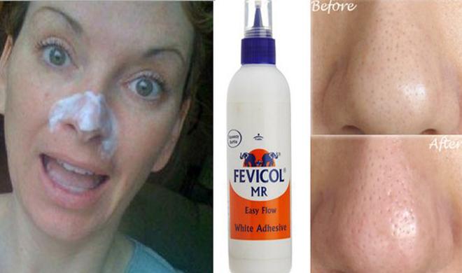 glue fevicol to remove blackheads- India TV