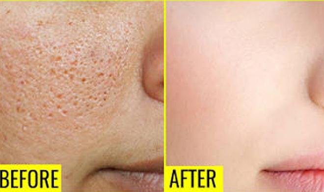 large pores- Khabar IndiaTV