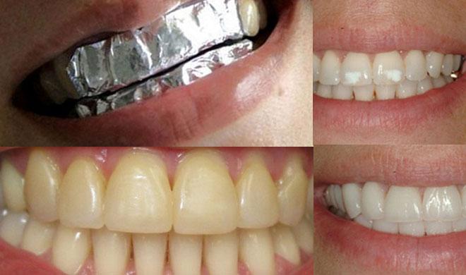 teeth- Khabar IndiaTV
