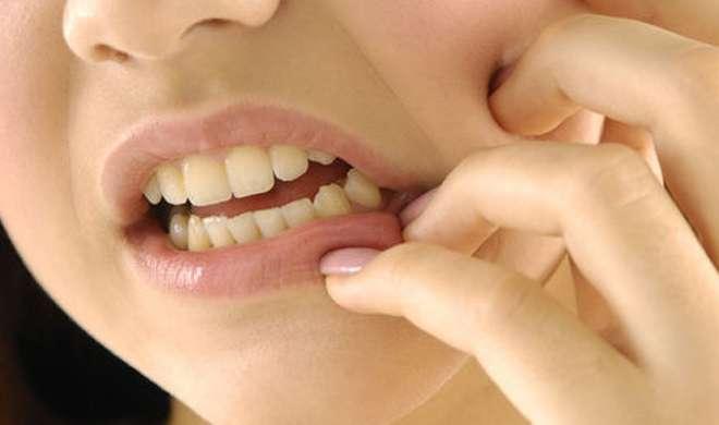teeth pain- India TV