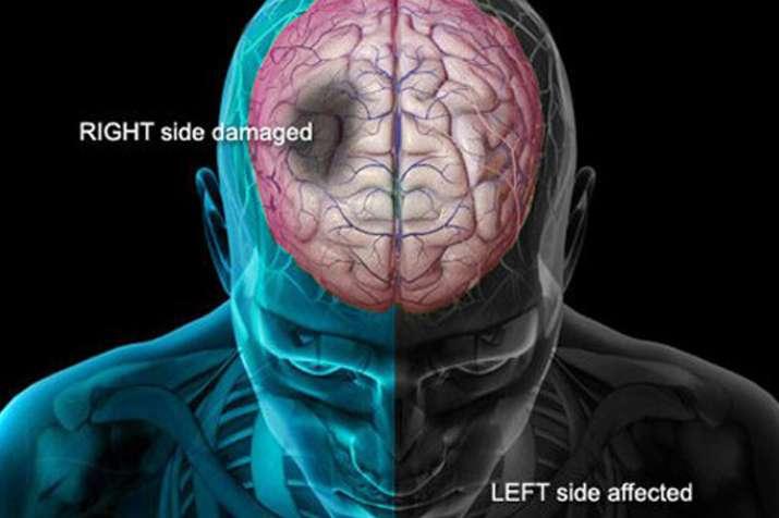 brain stroke - India TV