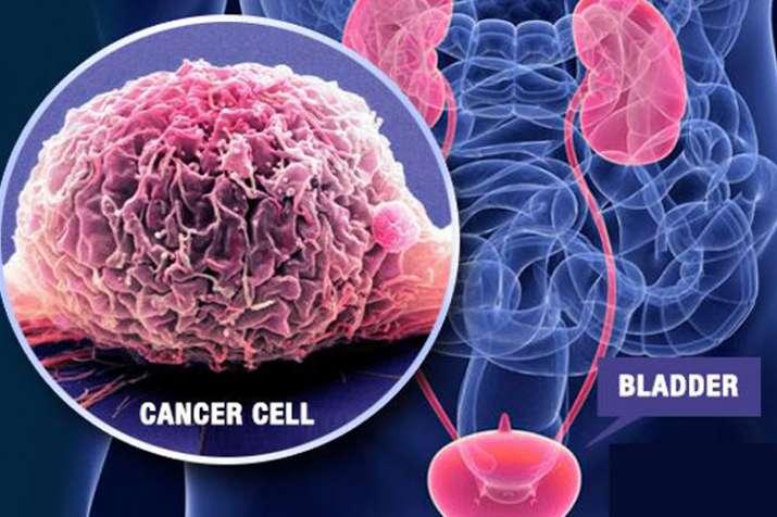 bladder cancer- India TV