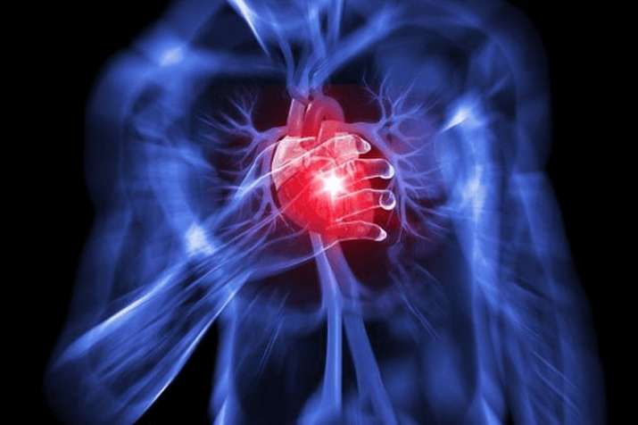 HEART ATTACK- India TV
