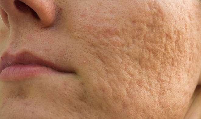 skin pores- Khabar IndiaTV