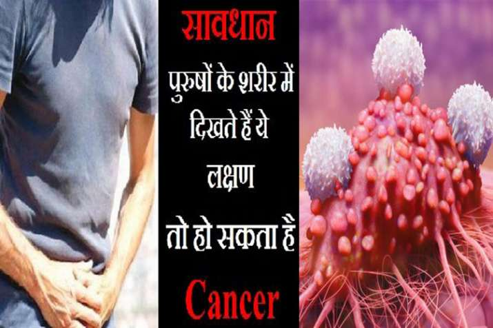 Cancer- India TV