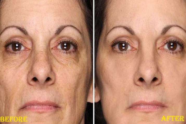 Home remedies to remove wrinkles- Khabar IndiaTV