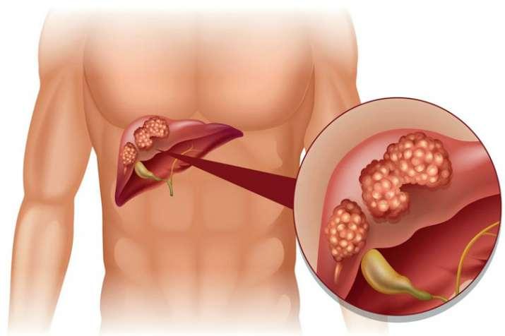 Liver cancer symptoms Causes diagnosis and treatment