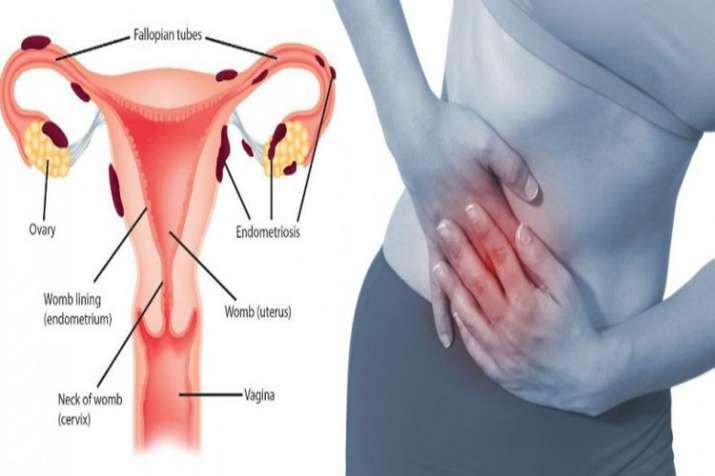 Understanding endometriosis in hindi symptoms causes stage and