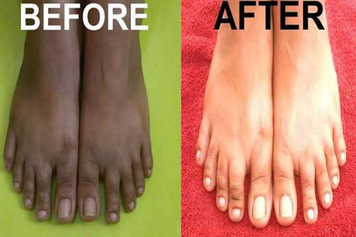 Feet- India TV