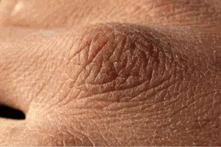 skin problem- India TV