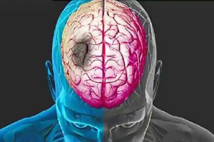 brain stroke- India TV