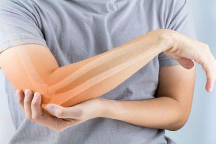 osteoporosis- India TV