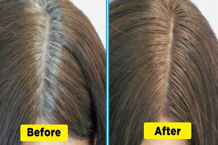 hair problem- India TV