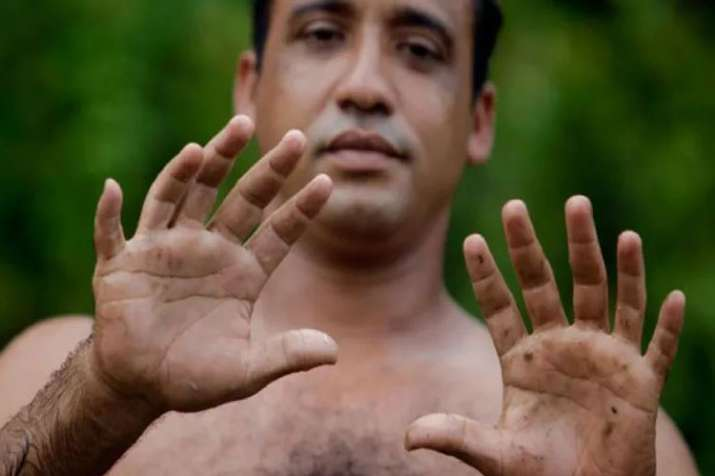 6 fingers per hand are better than 5 says research - India TV