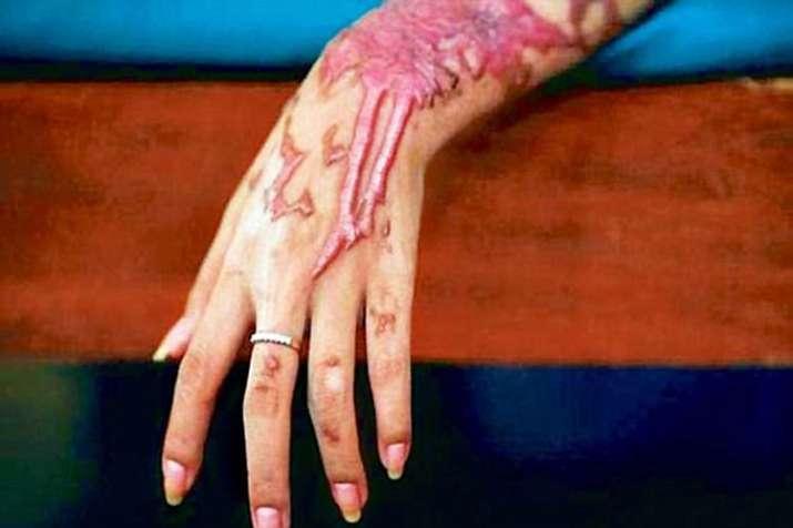 Acid Attack- India TV