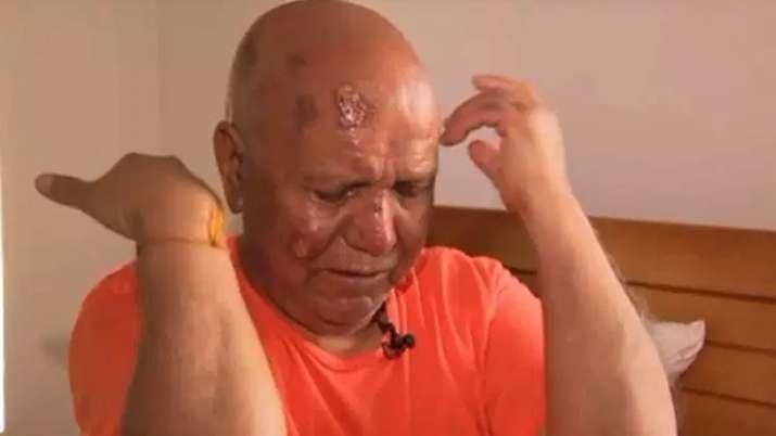 Hindu priest Harish Chander Puri attacked near temple in US | Videograb/PIX 11 news- India TV