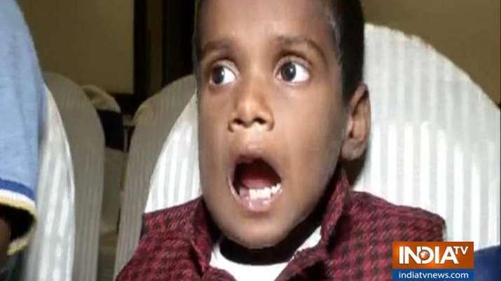 चेन्नई में दुनिया का सबसे अनोखा ऑपेरशन, 7 साल के बच्चे के मुंह से निकाले 526 दांत- India TV