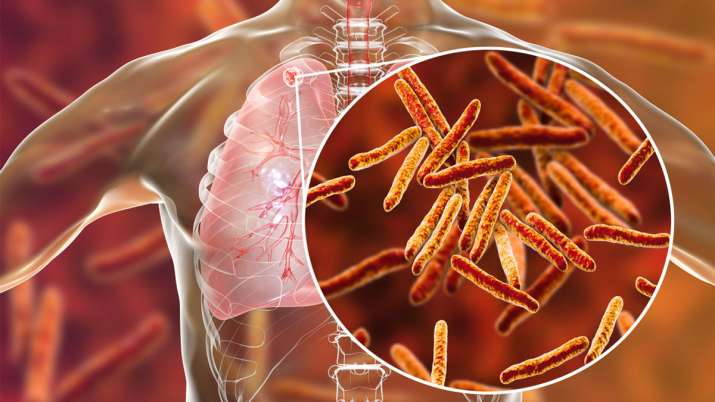 quarter of the worlds population at risk of developing tuberculosis- India TV