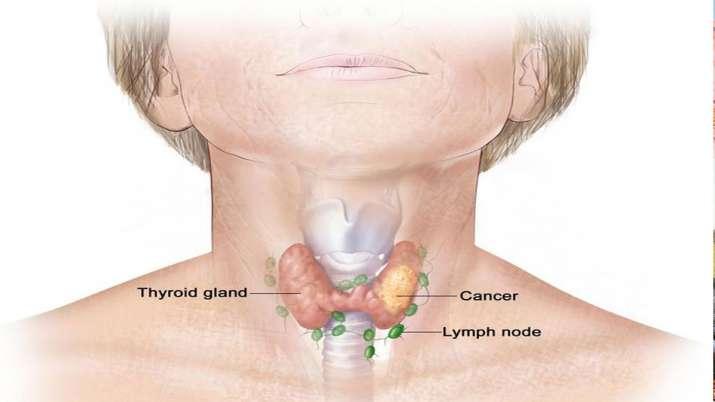thyroid cancer- India TV